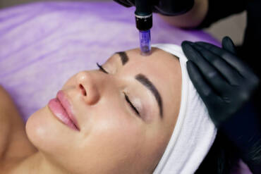 Microneedling Can Lessen the Appearance of Acne Scars