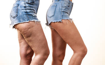 Kiss Cellulite Goodbye With Cryoskin Treatments
