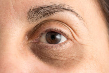 Do Under-Eye Fillers Really Work to Treat Dark Circles?