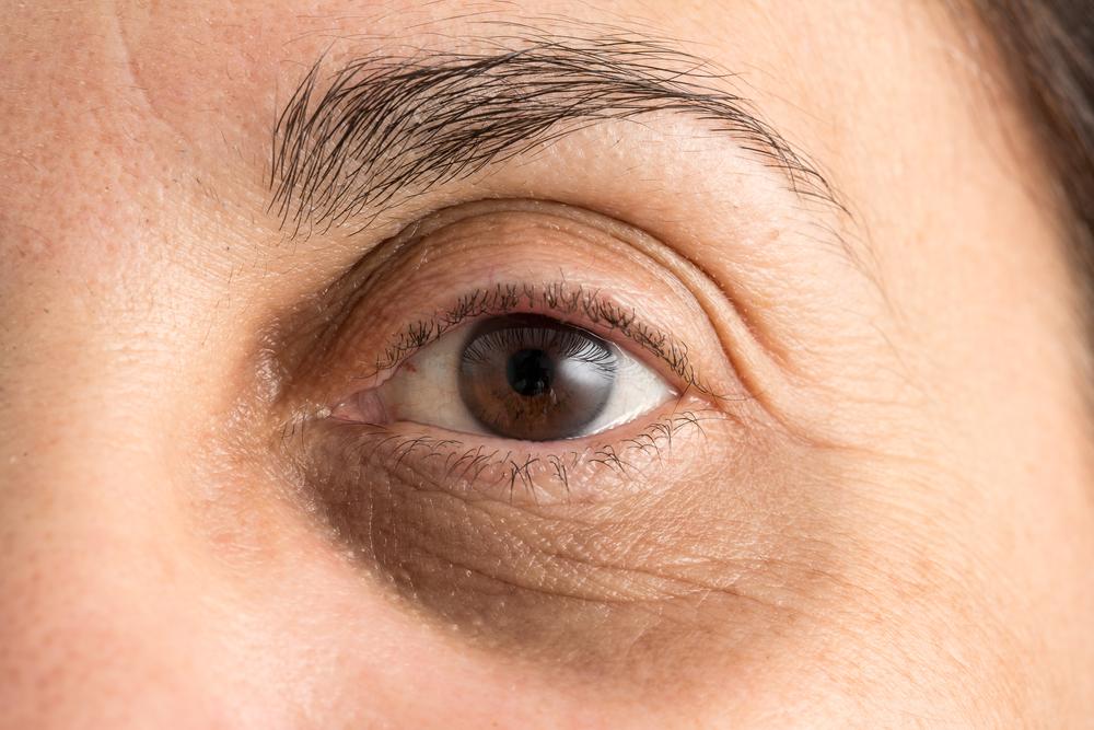 Do Under-Eye Fillers Really Work to Treat Dark Circles?